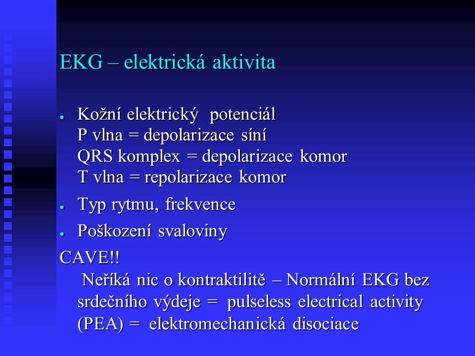 EKG – elektrická aktivita ● Kožní elektrický potenciál P vlna = depolarizace síní QRS komplex = depolarizace komor T vlna = repolarizace komor ● Typ rytmu, frekvence ● Poškození svaloviny CAVE!.