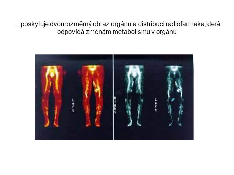 …poskytuje dvourozměrný obraz orgánu a distribuci radiofarmaka,která odpovídá změnám metabolismu v orgánu