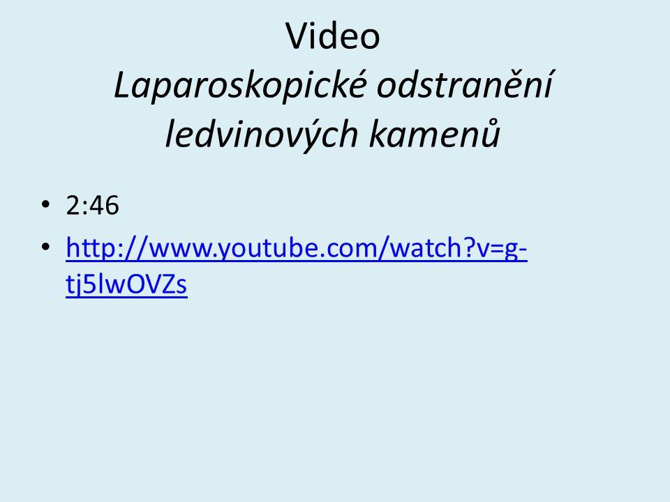Video Laparoskopické odstranění ledvinových kamenů 2:46 http://www.youtube.com/watch?v=g- tj5lwOVZs http://www.youtube.com/watch?v=g- tj5lwOVZs