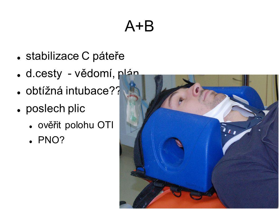 stabilizace C páteře d.cesty - vědomí, plán obtížná intubace?? poslech plic ověřit polohu OTI PNO?