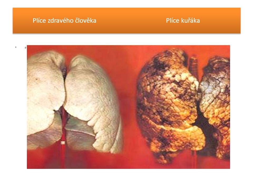 Plíce zdravého člověka Plíce kuřáka p