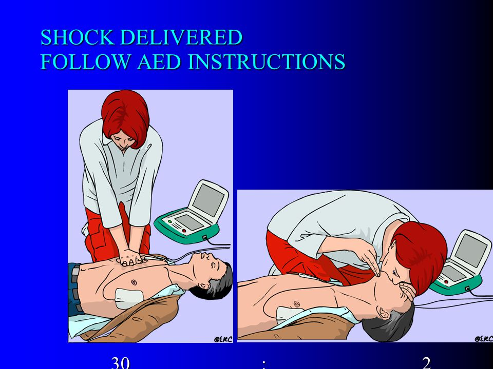 SHOCK DELIVERED FOLLOW AED INSTRUCTIONS 30 : 2