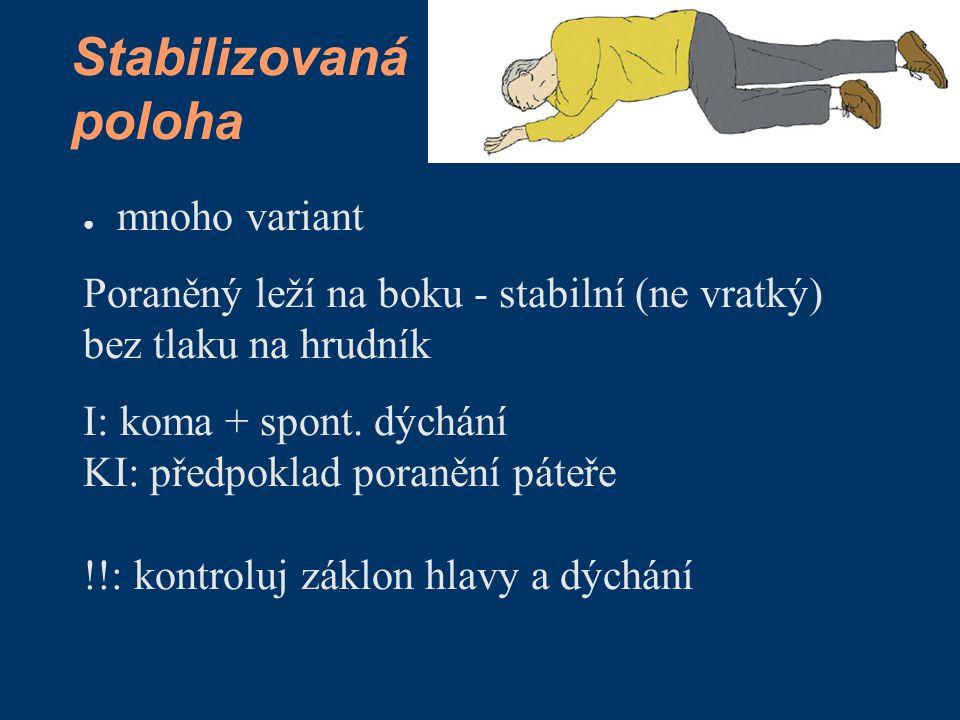 Stabilizovaná poloha ● mnoho variant Poraněný leží na boku - stabilní (ne vratký) bez tlaku na hrudník I: koma + spont. dýchání KI: předpoklad poraněn