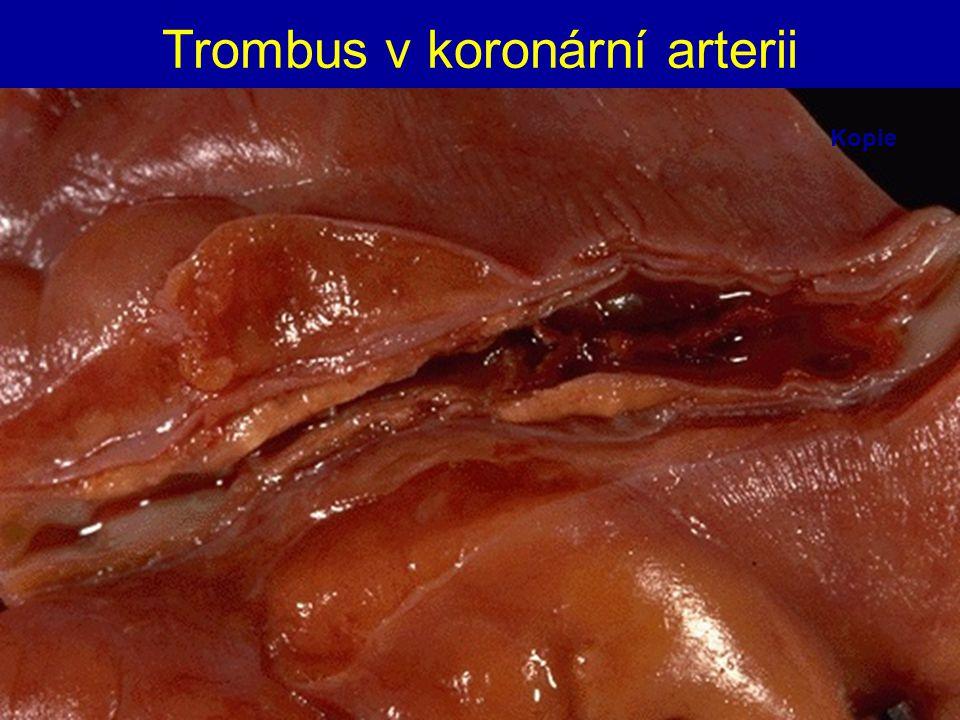 Trombus v koronární arterii Kopie