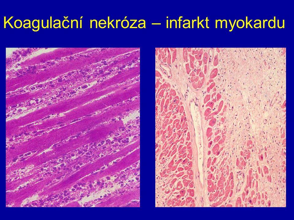 Koagulační nekróza – infarkt myokardu