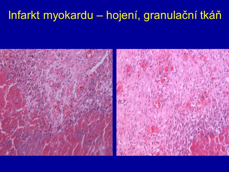Infarkt myokardu – hojení, granulační tkáň