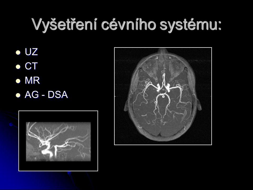 Vyšetření cévního systému: UZ UZ CT CT MR MR AG - DSA AG - DSA