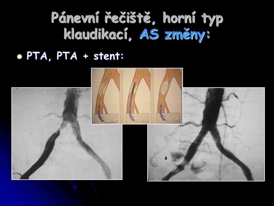 Pánevní řečiště, horní typ klaudikací, AS změny: PTA, PTA + stent: PTA, PTA + stent: