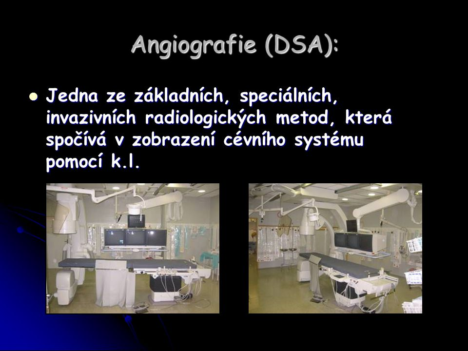 Angiografie (DSA): Jedna ze základních, speciálních, invazivních radiologických metod, která spočívá v zobrazení cévního systému pomocí k.l. Jedna ze