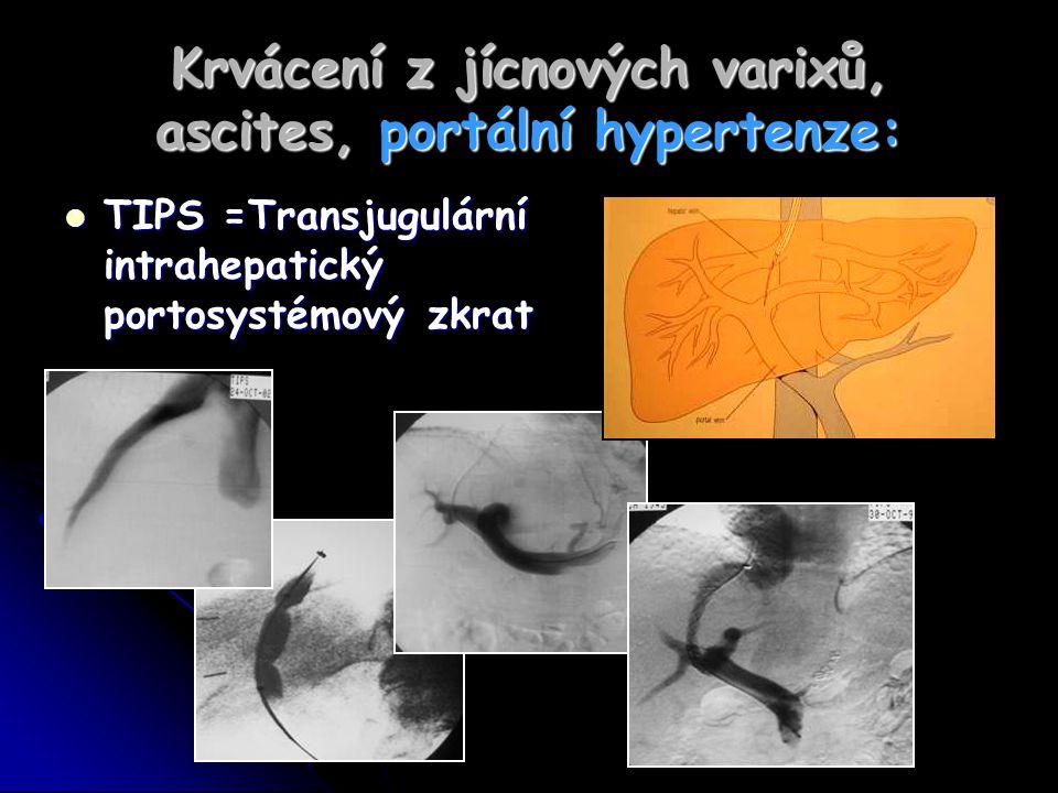 Krvácení z jícnových varixů, ascites, portální hypertenze: TIPS =Transjugulární intrahepatický portosystémový zkrat TIPS =Transjugulární intrahepatick