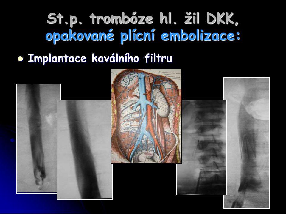 St.p. trombóze hl. žil DKK, opakované plícní embolizace: Implantace kaválního filtru Implantace kaválního filtru