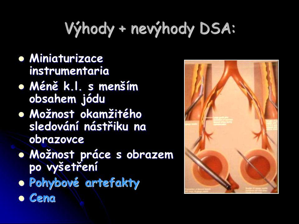 Indikace k použití DSA: Diagnostické Diagnostické Diagnosticko-terapeutické Diagnosticko-terapeutické