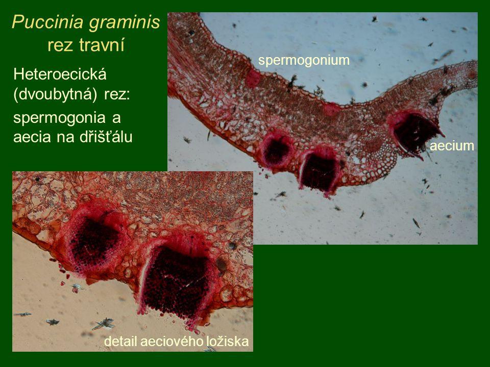 Puccinia graminis rez travní aecium spermogonium detail aeciového ložiska Heteroecická (dvoubytná) rez: spermogonia a aecia na dřišťálu