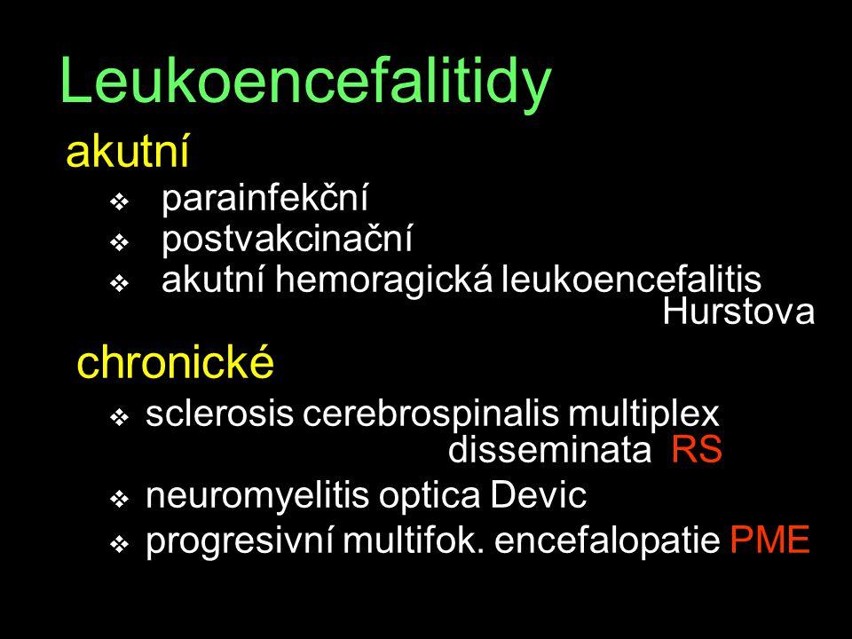 Leukoencefalitidy akutní v parainfekční v postvakcinační v akutní hemoragická leukoencefalitis Hurstova chronické v sclerosis cerebrospinalis multiple