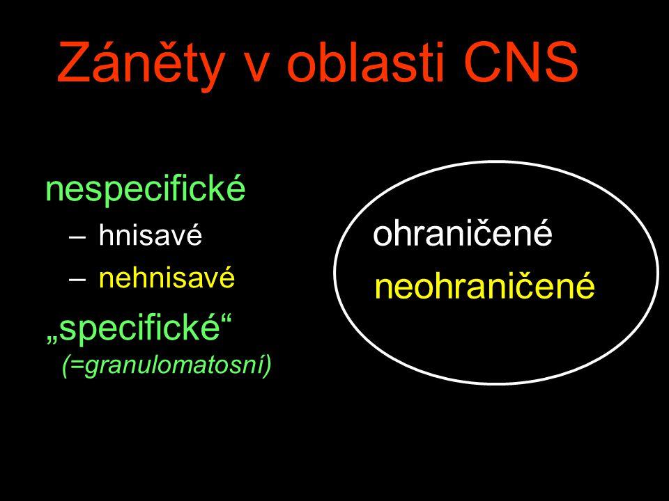 """Záněty v oblasti CNS nespecifické – hnisavé – nehnisavé """"specifické"""" (=granulomatosní) ohraničené neohraničené"""
