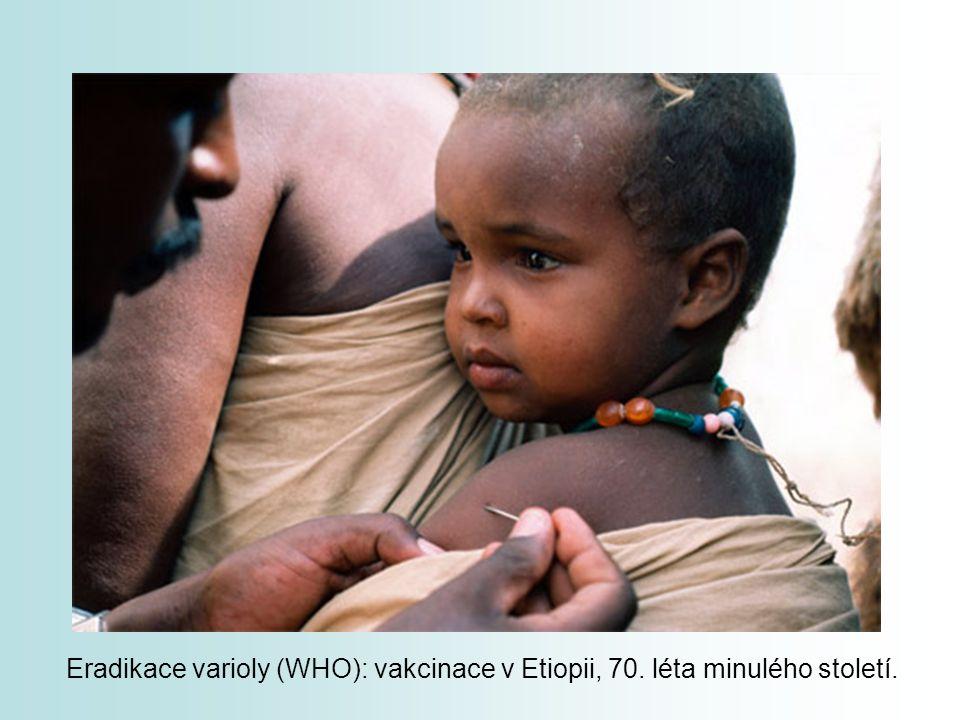 Eradikace varioly (WHO): vakcinace v Etiopii, 70. léta minulého století.