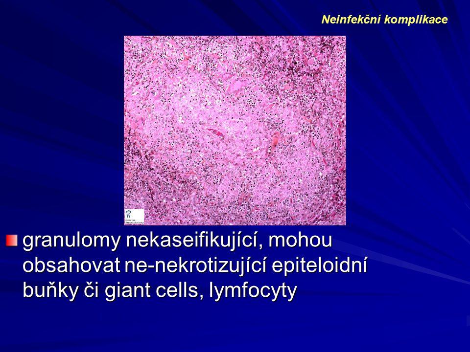 granulomy nekaseifikující, mohou obsahovat ne-nekrotizující epiteloidní buňky či giant cells, lymfocyty Neinfekční komplikace