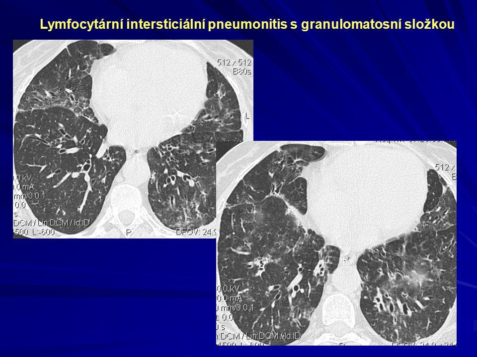 Lymfocytární intersticiální pneumonitis s granulomatosní složkou