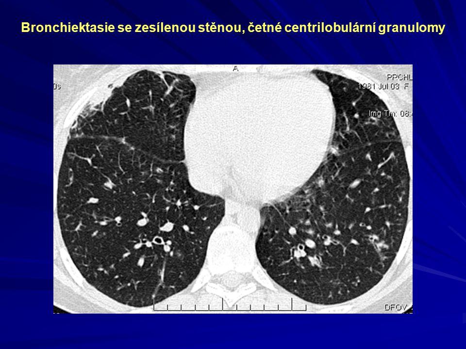 Bronchiektasie se zesílenou stěnou, četné centrilobulární granulomy
