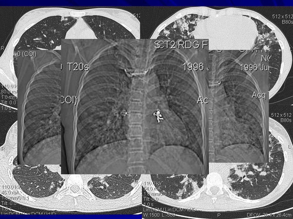 Pediatrické kazuistiky 15letá dívka, poprvé na DK FN HK hospitalizována 02/2009 dlouhodobě sledována ve spádové alergologické ordinaci pro AB, polyvalentní alergii po bronchopneumonii 11/08 přetrvávající infiltrace na RTG hrudníku hypogamaglobulinémie … dg.