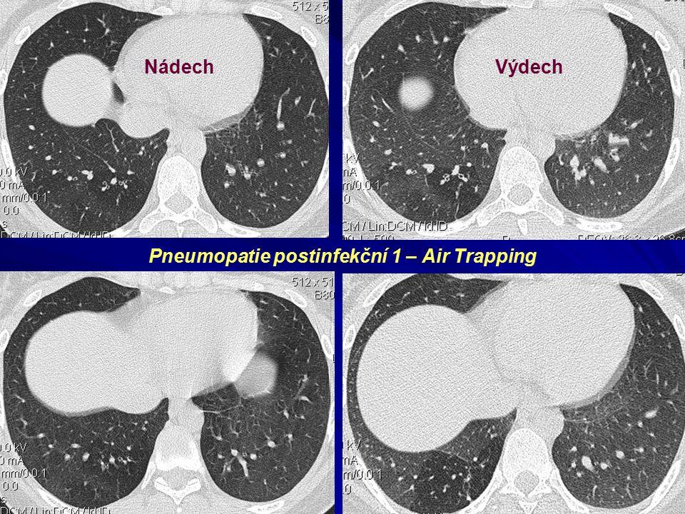 NádechVýdech Pneumopatie postinfekční 1 – Air Trapping