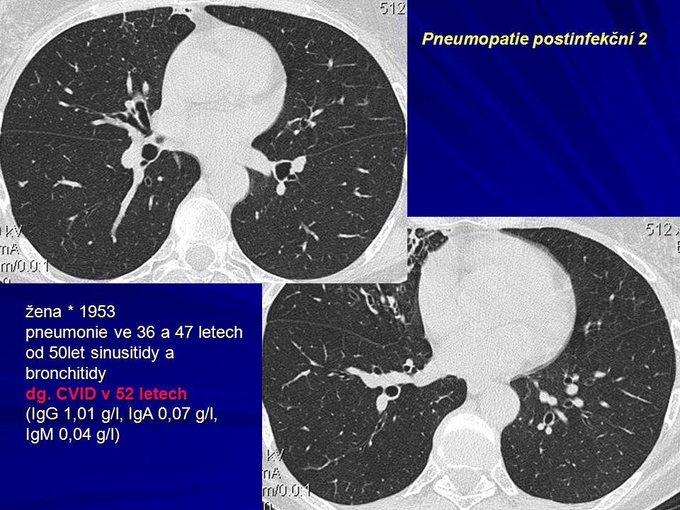 žena * 1953 pneumonie ve 36 a 47 letech od 50let sinusitidy a bronchitidy dg. CVID v 52 letech (IgG 1,01 g/l, IgA 0,07 g/l, IgM 0,04 g/l) Pneumopatie