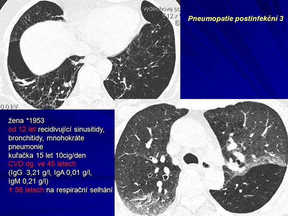 Pneumopatie postinfekční 3 žena *1953 od 12 let recidivující sinusitidy, bronchitidy, mnohokráte pneumonie kuřačka 15 let 10cig/den CVD dg. ve 45 lete