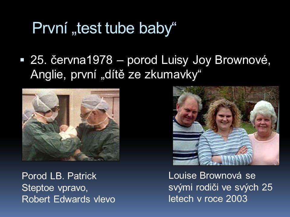 """První """"test tube baby""""  25. června1978 – porod Luisy Joy Brownové, Anglie, první """"dítě ze zkumavky"""" Louise Brownová se svými rodiči ve svých 25 letec"""