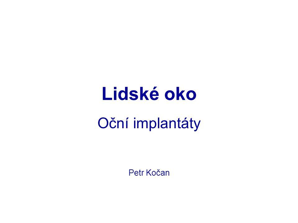 Lidské oko Oční implantáty Petr Kočan