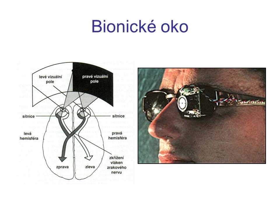 Bionické oko