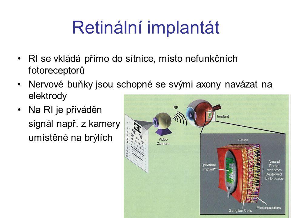 Retinální implantát RI se vkládá přímo do sítnice, místo nefunkčních fotoreceptorů Nervové buňky jsou schopné se svými axony navázat na elektrody Na RI je přiváděn signál např.