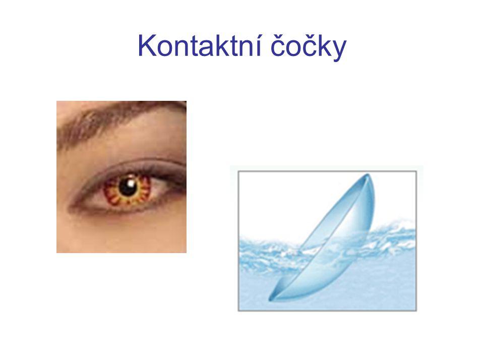 Implantovatelné čočky metoda je účinná v širokém rozsahu krátkozrakosti a dalekozrakosti velká přesnost výsledku i u velmi vysokých vad dochází k rychlé obnově zrakových funkcí centrální oblast rohovky je zákrokem nedotčena metoda má minimální míru přechodných nežádoucích projevů může být kombinována s laserovou refrakční chirurgií (BIOPTIKA) je reverzibilní (oko může být uvedeno do původního stavu)
