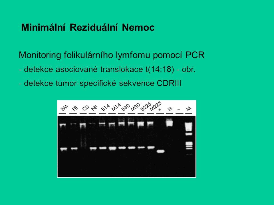 Monitoring folikulárního lymfomu pomocí PCR - detekce asociované translokace t(14:18) - obr. - detekce tumor-specifické sekvence CDRIII Minimální Rezi