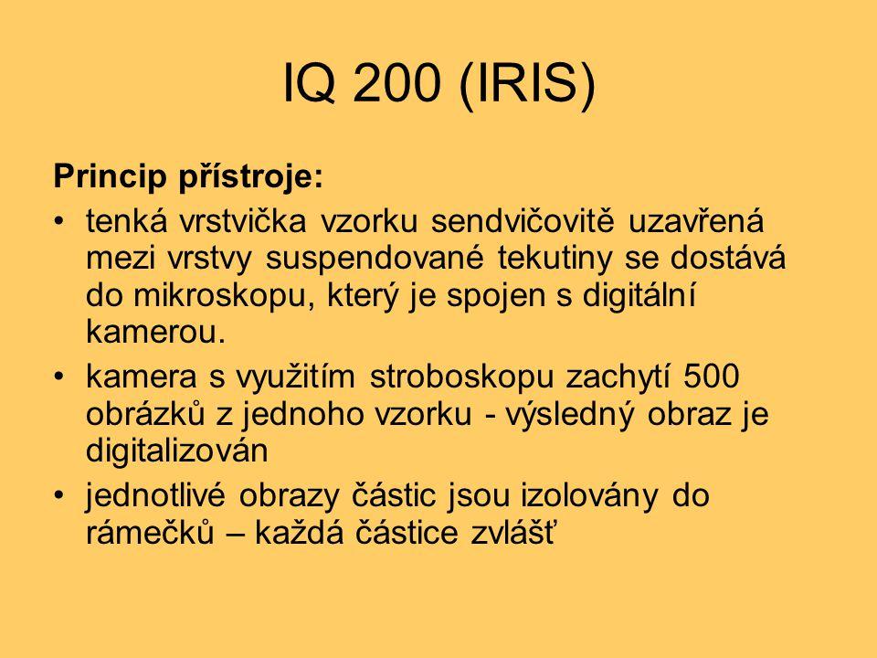 IQ 200 (IRIS) Princip přístroje: tenká vrstvička vzorku sendvičovitě uzavřená mezi vrstvy suspendované tekutiny se dostává do mikroskopu, který je spojen s digitální kamerou.