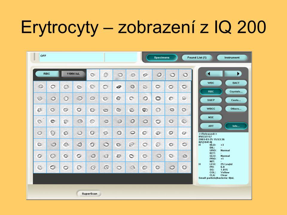 Erytrocyty – zobrazení z IQ 200