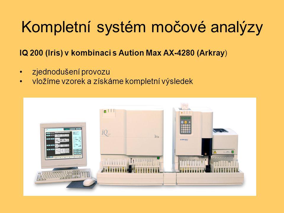 Kompletní systém močové analýzy IQ 200 (Iris) v kombinaci s Aution Max AX-4280 (Arkray) zjednodušení provozu vložíme vzorek a získáme kompletní výsled