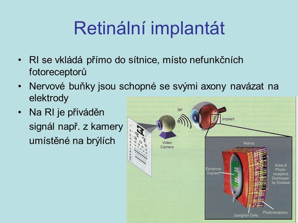Retinální implantát RI se vkládá přímo do sítnice, místo nefunkčních fotoreceptorů Nervové buňky jsou schopné se svými axony navázat na elektrody Na R