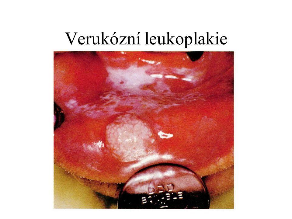 Verukózní leukoplakie