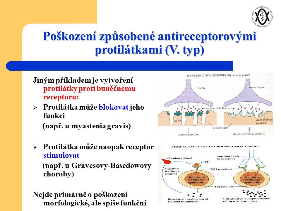 Poškození způsobené antireceptorovými protilátkami (V. typ) Jiným příkladem je vytvoření protilátky proti buněčnému receptoru:  Protilátka může bloko