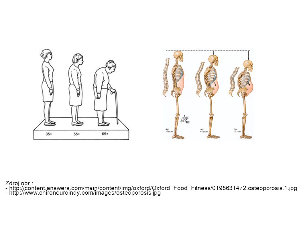 Zdroj obr.: - http://content.answers.com/main/content/img/oxford/Oxford_Food_Fitness/0198631472.osteoporosis.1.jpg - http://www.chironeuroindy.com/images/osteoporosis.jpg