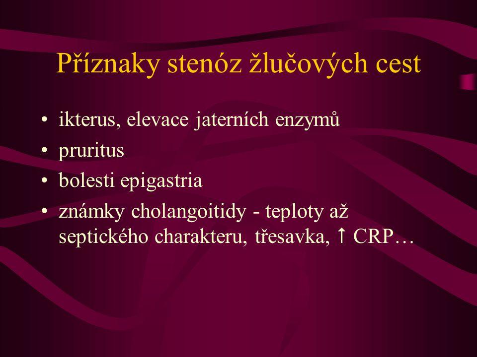 Příznaky stenóz žlučových cest ikterus, elevace jaterních enzymů pruritus bolesti epigastria známky cholangoitidy - teploty až septického charakteru,