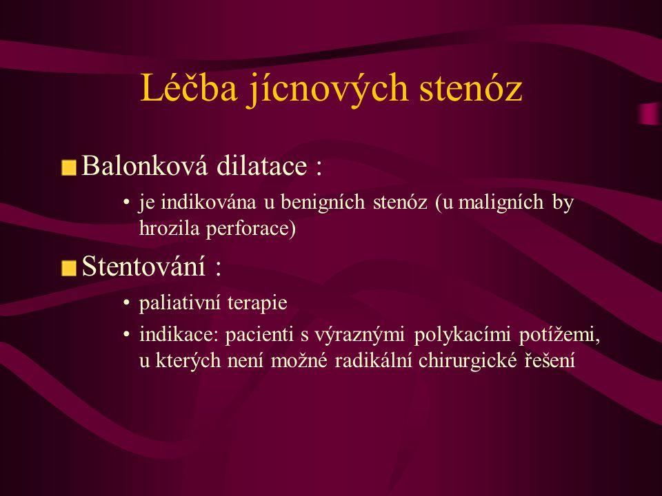 Léčba jícnových stenóz Balonková dilatace : je indikována u benigních stenóz (u maligních by hrozila perforace) Stentování : paliativní terapie indika
