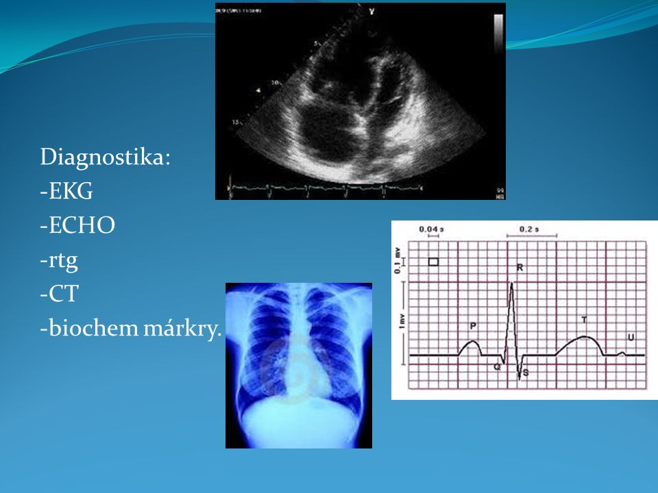 Diagnostika: -EKG -ECHO -rtg -CT -biochem márkry.