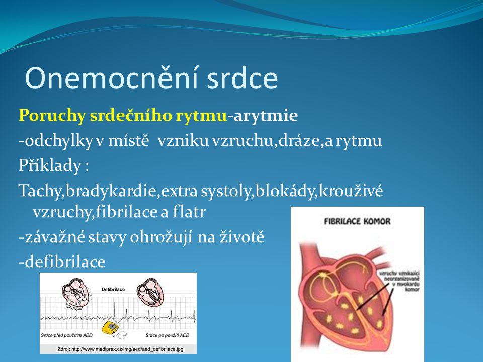 Onemocnění srdce Poruchy srdečního rytmu-arytmie -odchylky v místě vzniku vzruchu,dráze,a rytmu Příklady : Tachy,bradykardie,extra systoly,blokády,krouživé vzruchy,fibrilace a flatr -závažné stavy ohrožují na životě -defibrilace