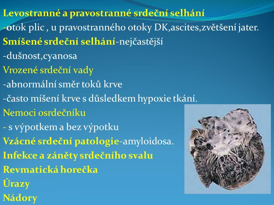 Levostranné a pravostranné srdeční selhání -otok plic, u pravostranného otoky DK,ascites,zvětšení jater.