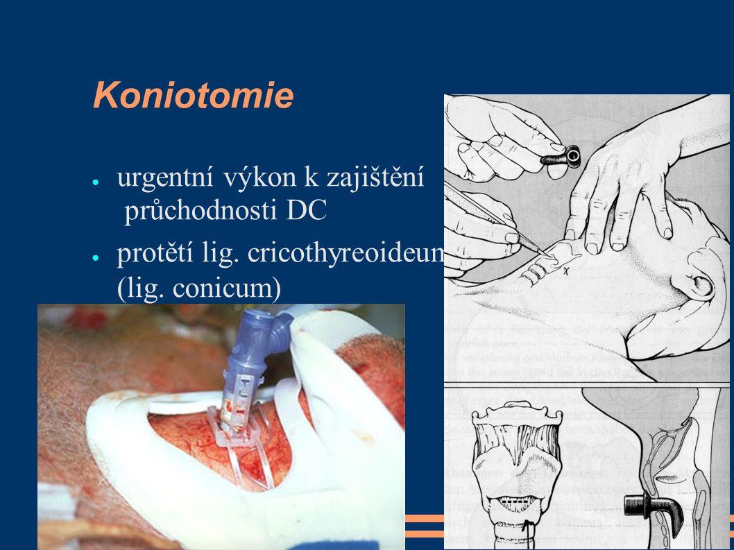 Koniotomie ● urgentní výkon k zajištění průchodnosti DC ● protětí lig.