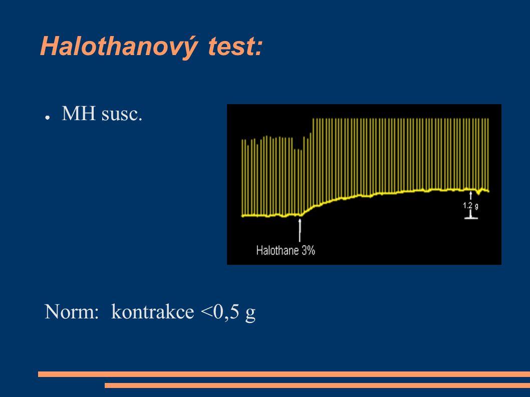 Halothanový test: ● MH susc. Norm: kontrakce <0,5 g