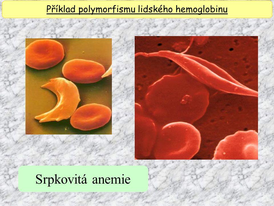 Srpkovitá anemie