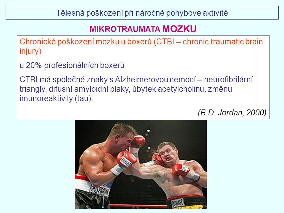 Chronické poškození mozku u boxerů (CTBI – chronic traumatic brain injury) u 20% profesionálních boxerů CTBI má společné znaky s Alzheimerovou nemocí