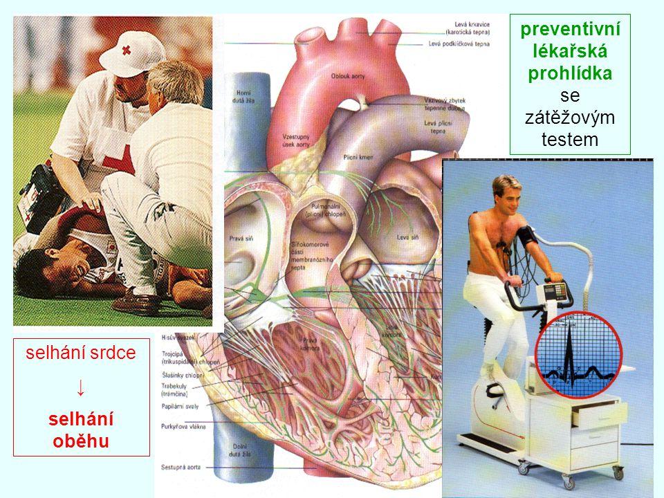 selhání srdce ↓ selhání oběhu preventivní lékařská prohlídka se zátěžovým testem